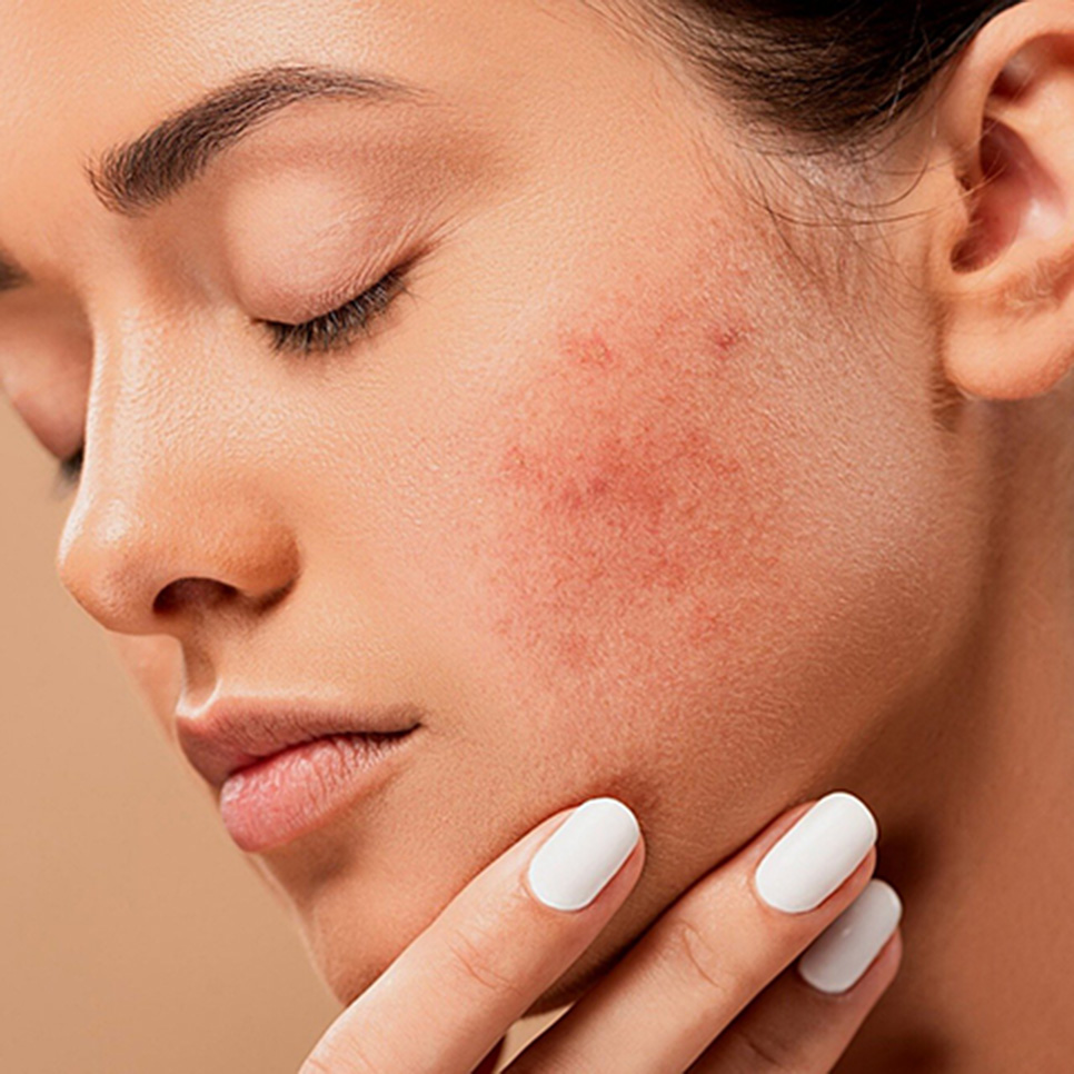 woman with face acne
